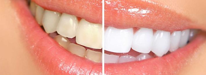 teeth-stain_1